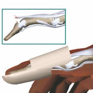 ναρθηκάκι δακτύλου katsoulas.eu