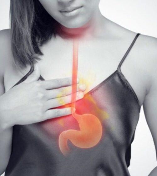 γαστοοισοφαγική παλινδρόμηση ιατρικά Κατσούλας katsoulas.eu